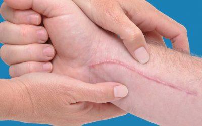 Il trattamento delle cicatrici